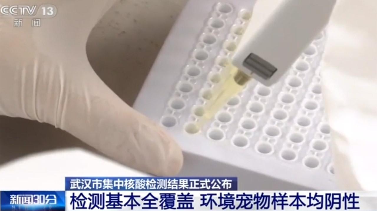 武汉市集中核酸检测结果正式公布:环境宠物样本均阴性