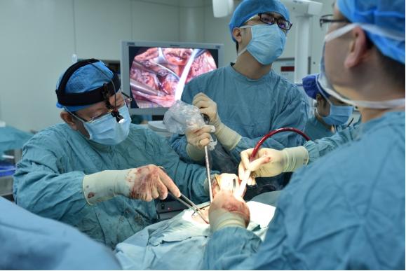 """全球首例!39岁男子心脏长在右边,湘雅二医院为镜面人进行""""迷宫手术"""""""