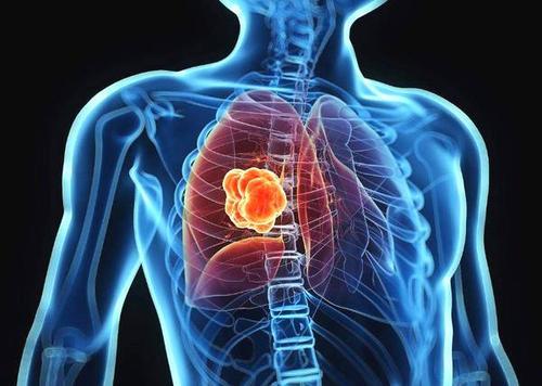 全球肺癌关注月:除了吸烟,导致肺癌的这个原因不能忽视