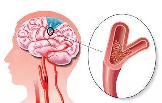 二胎妈妈突发脑卒中,专家提醒:劳逸结合,避免颈部用力