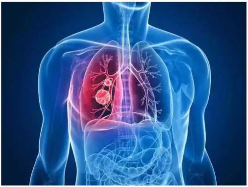 """男子肺发育不全,心脏跟着呈""""葛优躺"""""""