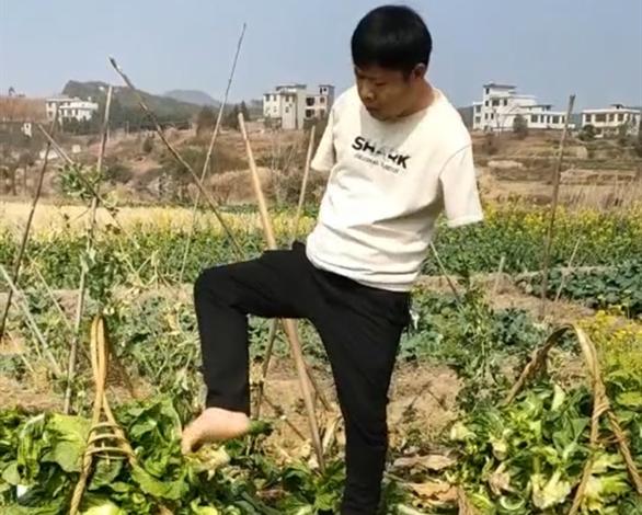 """郴州""""无臂""""青年:双脚不仅可以丈量大地,也能撑起一片天!"""