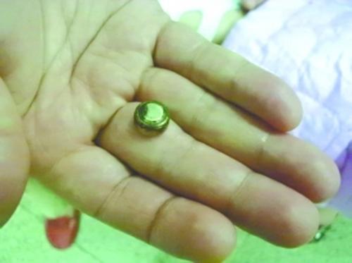 纽扣电池塞入鼻孔,3岁孩子鼻腔灼伤