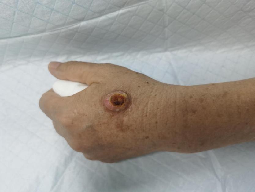 药膏反复刺激,小肿物恶化成癌