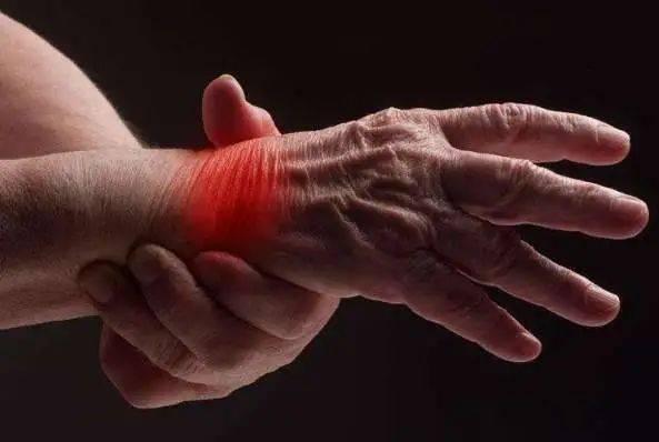 世界关节炎日|注意保养!气温骤降关节炎患者增加2-3成